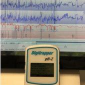 Impedancia PH Esofágica Ambulatoria